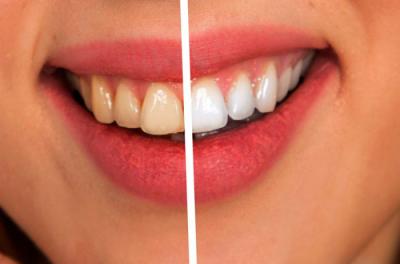 ホワイトニングした歯
